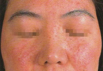 顔ダニの増殖によって生じるニキビ