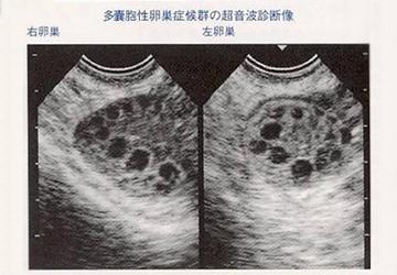 多のう胞性卵巣の説明