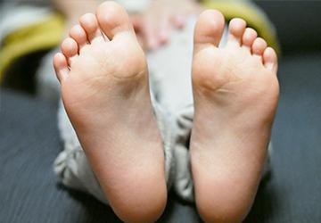 のひらや足の裏にブツブツとしたみずぶくれができ皮膚は赤く、カサカサしかさぶたがはがれ落ちます