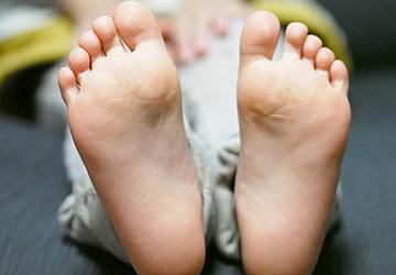 「白癬」といい、白癬菌というカビの種類の菌が繁殖して起こる皮膚の病気です。