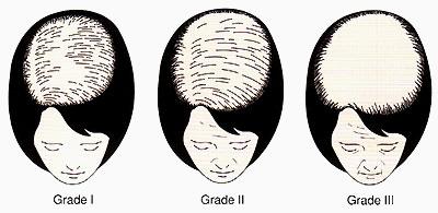 ルードヴィヒの分類