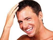 AGA発毛治療 イメージ