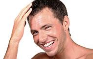 AGA(男性型脱毛症)発毛治療 イメージ