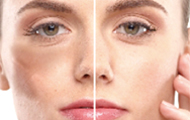 シミ・肝斑・くすみの治療 イメージ